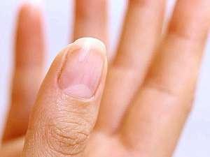 详细分析手指白月牙养生奥秘