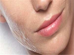 胶原蛋白丰唇有什么风险