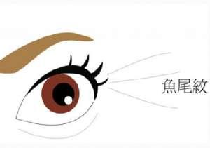激光除皱可以去除眼角纹吗