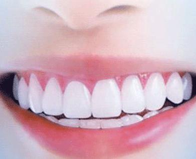 女人做牙齿美白后的护理