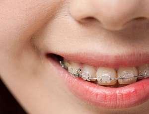 种植牙的优势有哪些呢