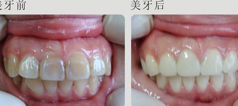 女人用什么方法解决牙齿问题呢