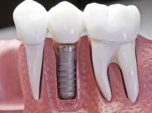 种植牙的优势和使用寿命
