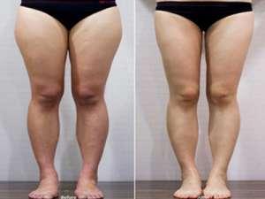 多余脂肪消除的刮痧瘦腿法