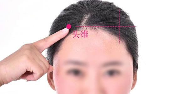 头维的准确位置图 头维穴