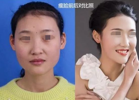 瘦脸针要打几次才可以长久呢