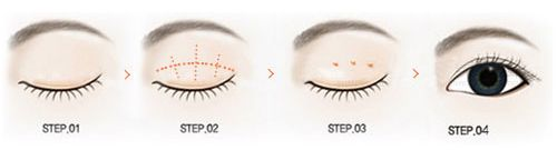 割双眼皮需要多少钱?如何判断价格是否合理