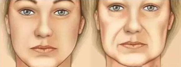 什么是全颜面除皱?除皱术后如何护理