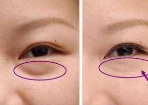 消除眼袋的最好方法 七种去眼袋的小窍门