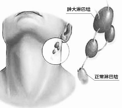 【脖子上的淋巴结在什么位置】脖子上的淋巴位置图