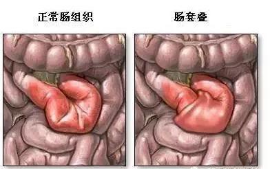 什么是肠梗阻?怎么治疗