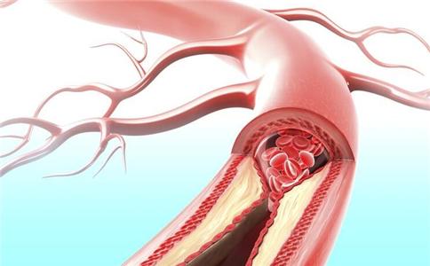 动脉硬化的早期症状 动脉硬化的症状表现 动脉硬化会有哪些表现