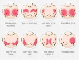 胸部整形术需要注意什么