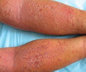 干燥性湿疹