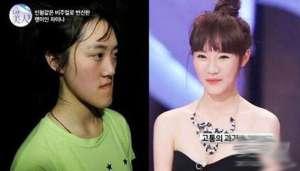 韩整形节目《Let美人》 最成功的整容案例