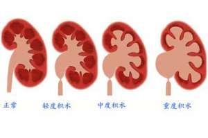 肾积水的症状和原因有哪些呢?