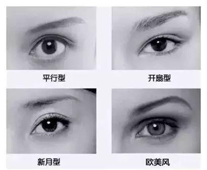 双眼皮的四种类型