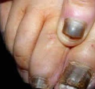 怎样治疗灰指甲呢