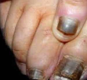 得了灰指甲应该怎么治疗?