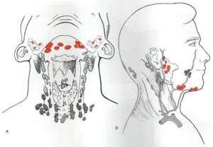 腮腺肿瘤是怎么回事严重吗?