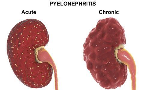 肾病综合征患者怎么吃 肾病综合征不能吃什么 肾病综合征吃什么好