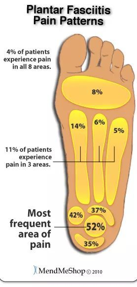 脚跟疼是怎么回事?什么原因引起?