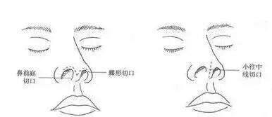 鼻子假体要什么时候取出来?